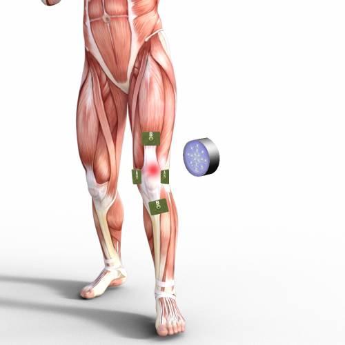 10. Arthrofibrose Fachseminar