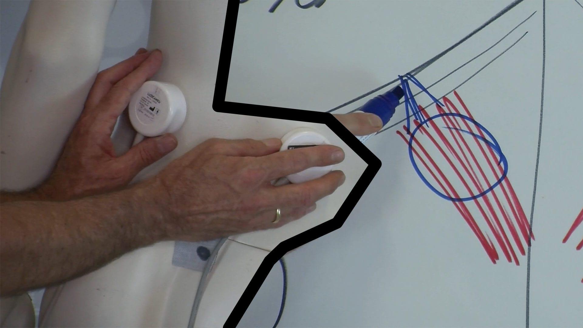 reflexmuskeln-lichttherapie-mikrostrom